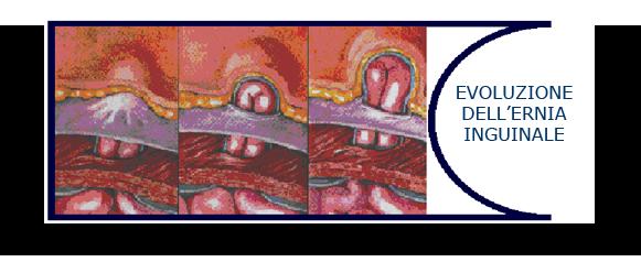 Dolori gravi in una parte in avanti di un collo
