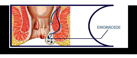 emorroide