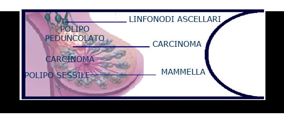 linfonodi