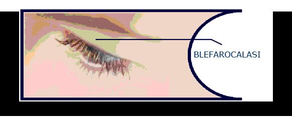 blefarocalasi