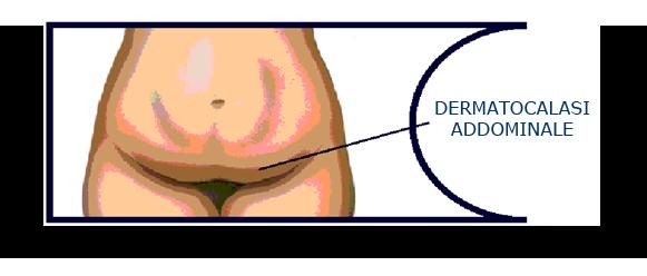 dermatocalasi