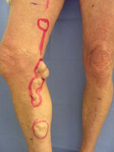 Tela di lino di compressione a varicosity di gambe