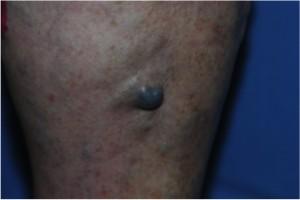 Thrombembolia di vene del trattamento di sintomi di estremità più basso